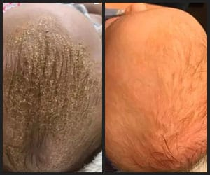 Cradle Cap Removed by Using Jojoba Oil