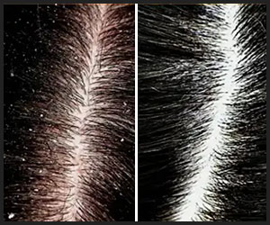 Dandruff Removed by Using Jojoba Oil