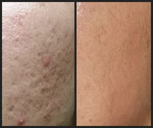 Eliminate Acne Scars - INS2002