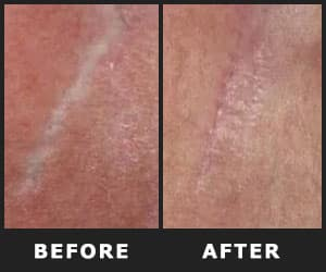 Removes Stretch Marks - INS2003