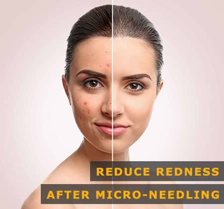 Featured Image of Reduce Redness After Micro-needling