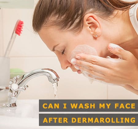 Featured Image of Can I Wash My Face After Dermarolling