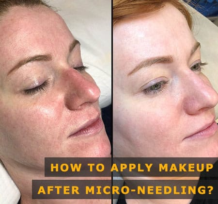 Featured Image of How to Apply Makeup After Micro-needling
